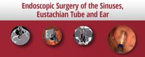 Endoscopic Surgery of the Sinuses, Eustachian Tube and Ear